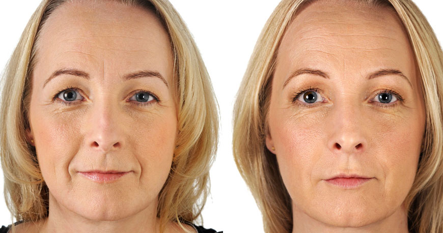 Full Face Fillers - Female