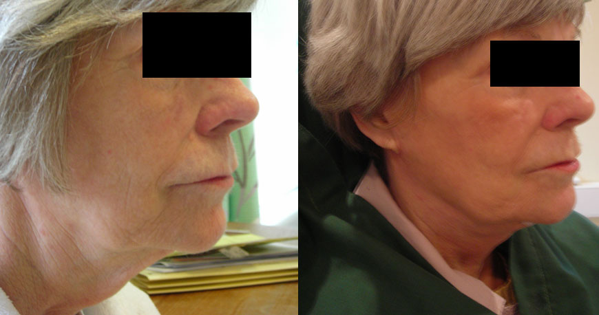 Surgical Neck Lift - Female