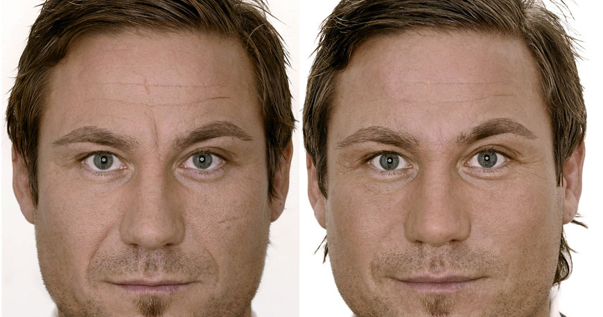 Full Face Filler - Male