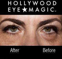 Hollywood eyemagic before and after